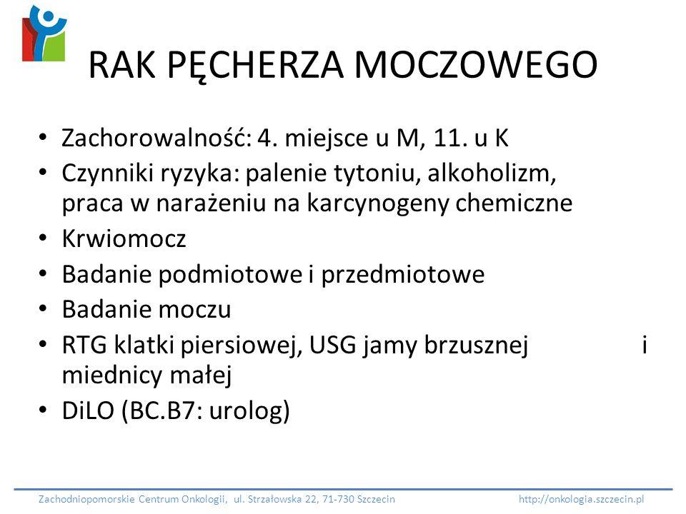 RAK PĘCHERZA MOCZOWEGO Zachorowalność: 4. miejsce u M, 11. u K Czynniki ryzyka: palenie tytoniu, alkoholizm, praca w narażeniu na karcynogeny chemiczn