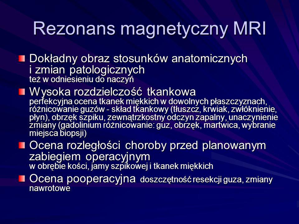 Rezonans magnetyczny MRI Dokładny obraz stosunków anatomicznych i zmian patologicznych też w odniesieniu do naczyń Wysoka rozdzielczość tkankowa perfe