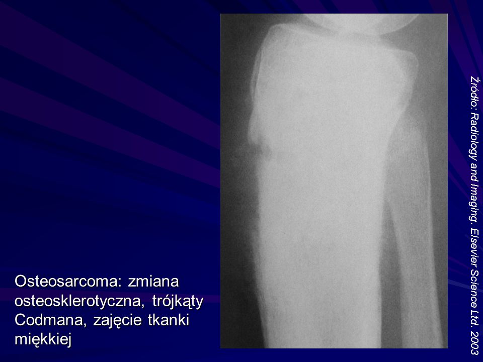 Źródło: Radiology and Imaging. Elsevier Science Ltd. 2003 Osteosarcoma: zmiana osteosklerotyczna, trójkąty Codmana, zajęcie tkanki miękkiej