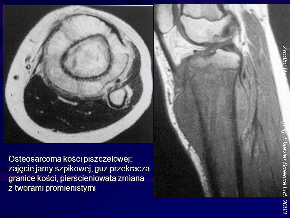 Osteosarcoma kości piszczelowej: zajęcie jamy szpikowej, guz przekracza granice kości, pierścieniowata zmiana z tworami promienistymi Źródło: Radiolog