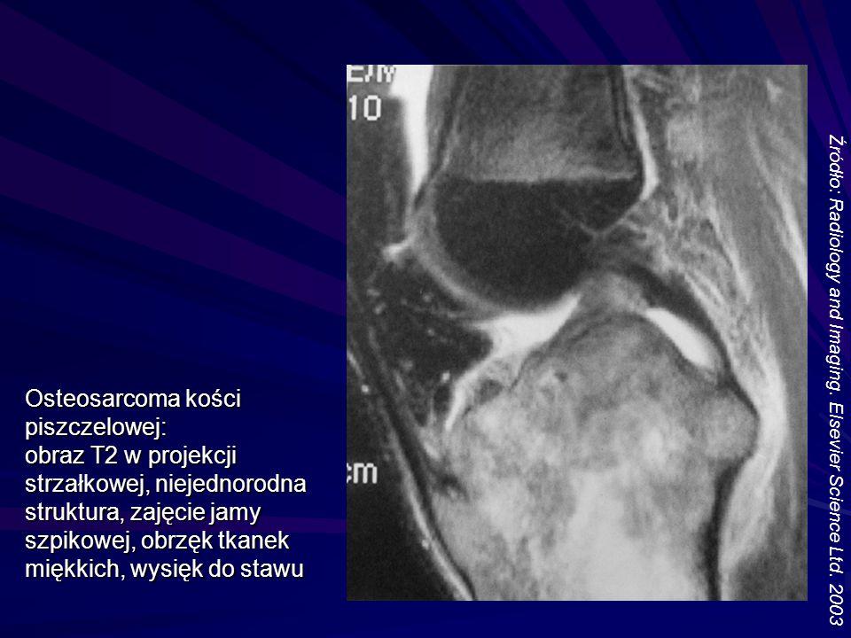 Osteosarcoma kości piszczelowej: obraz T2 w projekcji strzałkowej, niejednorodna struktura, zajęcie jamy szpikowej, obrzęk tkanek miękkich, wysięk do