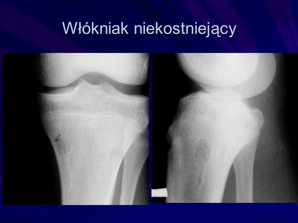 Osteosarcoma kości piszczelowej: osteosklerotyczna zmiana, odokostnowe tworzenie kości Źródło: Radiology and Imaging.