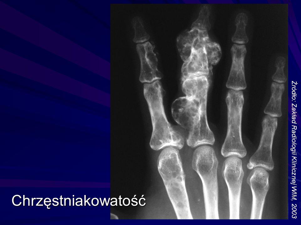 Chrzęstniakowatość Źródło: Zakład Radiologii Klinicznej WIM, 2003