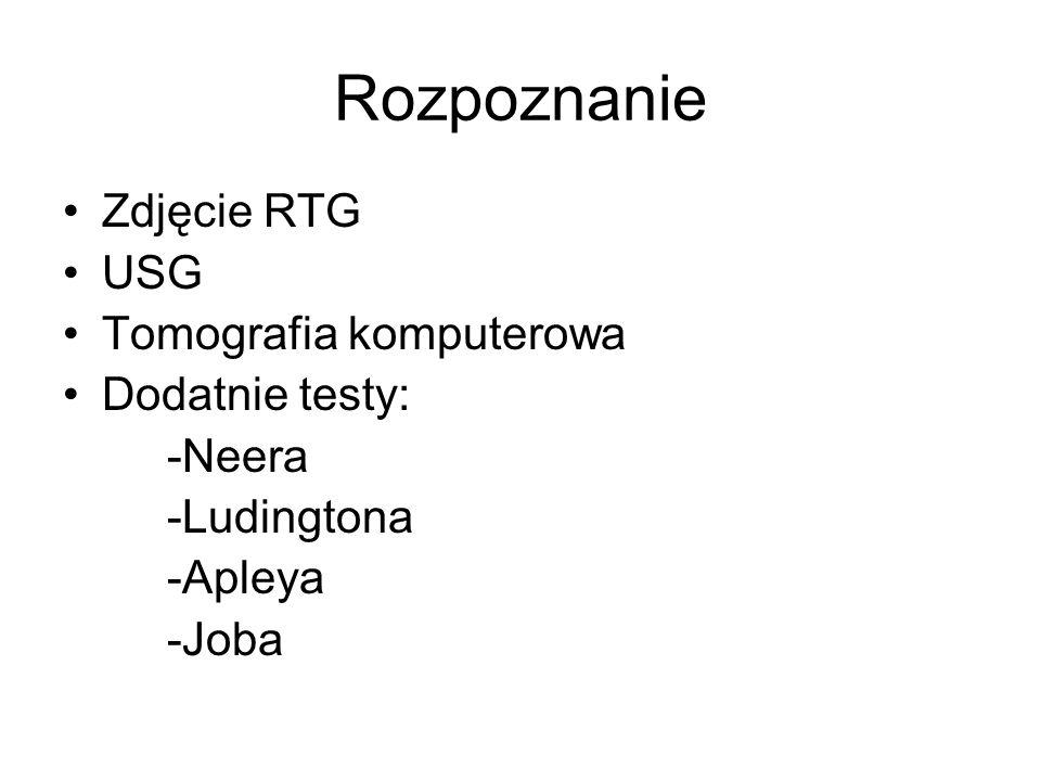 Rozpoznanie Zdjęcie RTG USG Tomografia komputerowa Dodatnie testy: -Neera -Ludingtona -Apleya -Joba