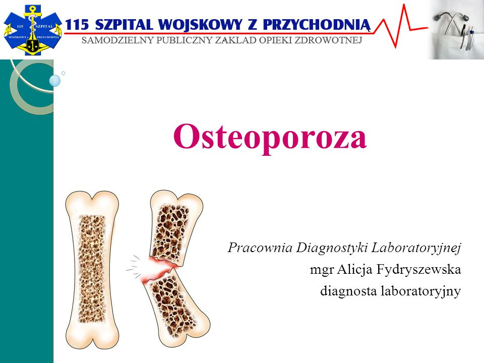 Osteoporoza Jest chorobą metaboliczną całego układu kostnego, która prowadzi do zmniejszenia masy kości i osłabienia jej właściwości mechanicznych co przejawia się zwiększonym ryzykiem złamań.