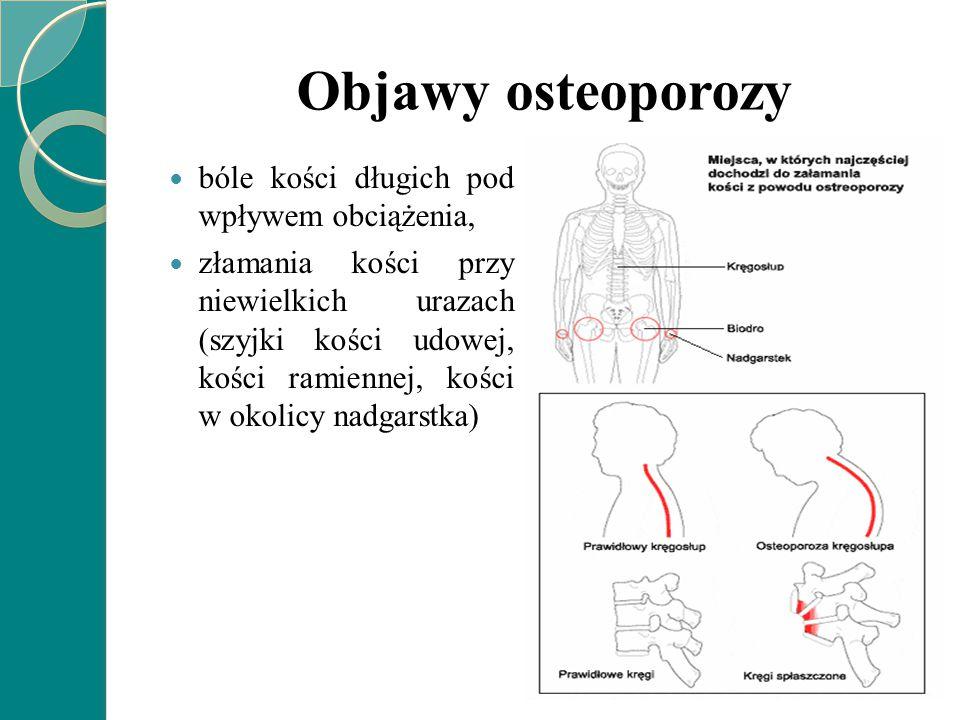 Objawy osteoporozy bóle kości długich pod wpływem obciążenia, złamania kości przy niewielkich urazach (szyjki kości udowej, kości ramiennej, kości w o