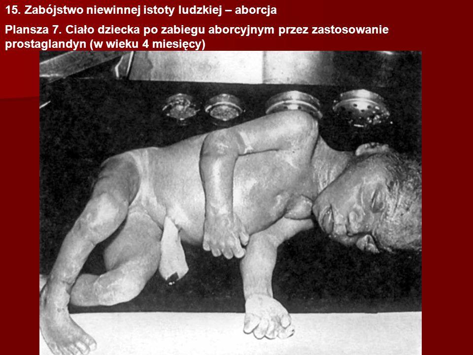 15.Zabójstwo niewinnej istoty ludzkiej – aborcja Plansza 8.