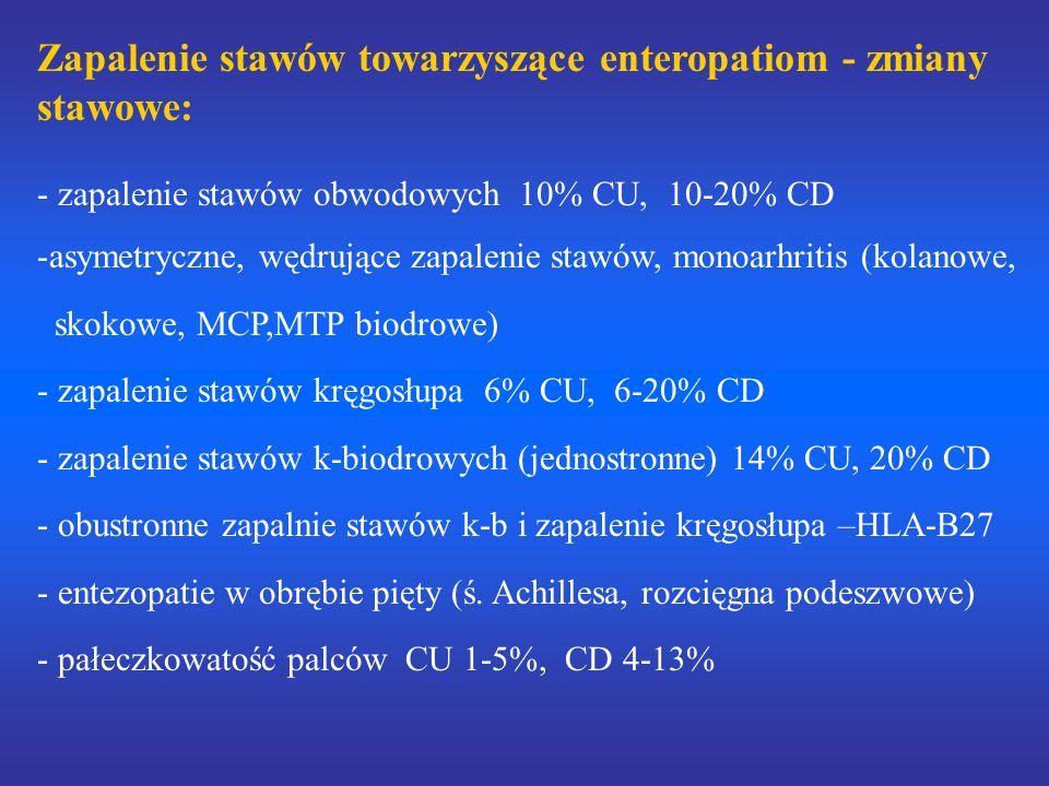 Zapalenie stawów towarzyszące enteropatiom - zmiany stawowe: - zapalenie stawów obwodowych 10% CU, 10-20% CD -asymetryczne, wędrujące zapalenie stawów, monoarhritis (kolanowe, skokowe, MCP,MTP biodrowe) - zapalenie stawów kręgosłupa 6% CU, 6-20% CD - zapalenie stawów k-biodrowych (jednostronne) 14% CU, 20% CD - obustronne zapalnie stawów k-b i zapalenie kręgosłupa –HLA-B27 - entezopatie w obrębie pięty (ś.