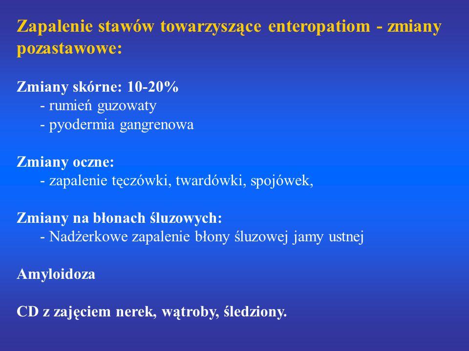 Zapalenie stawów towarzyszące enteropatiom - zmiany pozastawowe: Zmiany skórne: 10-20% - rumień guzowaty - pyodermia gangrenowa Zmiany oczne: - zapale
