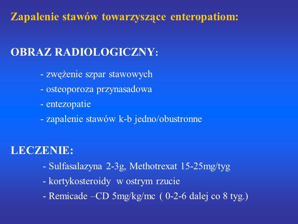 Zapalenie stawów towarzyszące enteropatiom: OBRAZ RADIOLOGICZNY : - zwężenie szpar stawowych - osteoporoza przynasadowa - entezopatie - zapalenie stawów k-b jedno/obustronne LECZENIE: - Sulfasalazyna 2-3g, Methotrexat 15-25mg/tyg - kortykosteroidy w ostrym rzucie - Remicade –CD 5mg/kg/mc ( 0-2-6 dalej co 8 tyg.)