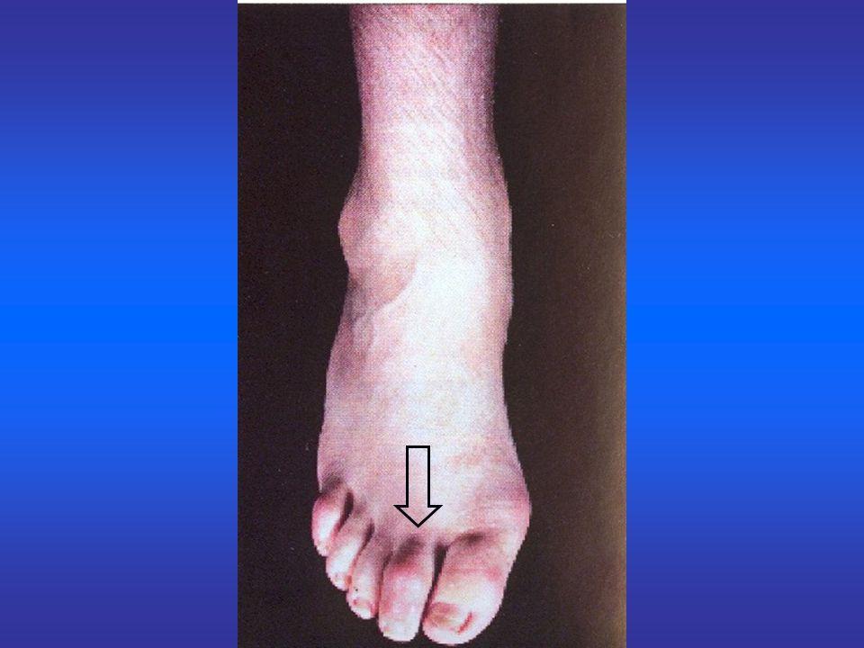 Zapalenie stawów - przebieg : czas trwania rzutu zapalenia 3-5 miesięcy, częste nawroty – ponowne zakażenia.