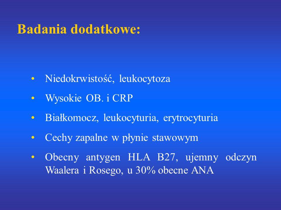 Badania dodatkowe: Niedokrwistość, leukocytoza Wysokie OB. i CRP Białkomocz, leukocyturia, erytrocyturia Cechy zapalne w płynie stawowym Obecny antyge