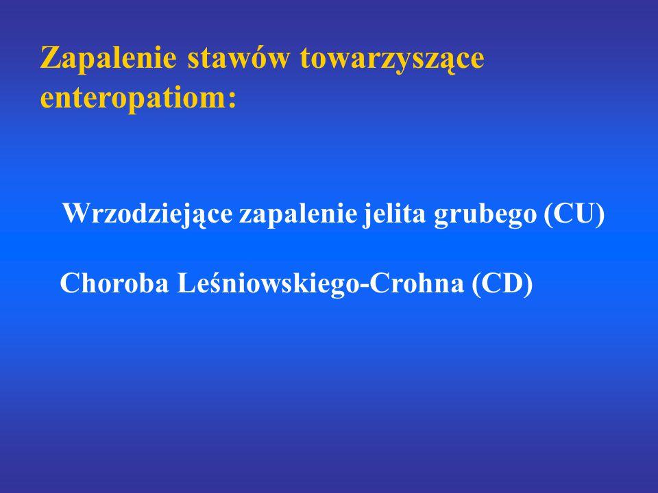 Zapalenie stawów towarzyszące enteropatiom: Wrzodziejące zapalenie jelita grubego (CU) Choroba Leśniowskiego-Crohna (CD)