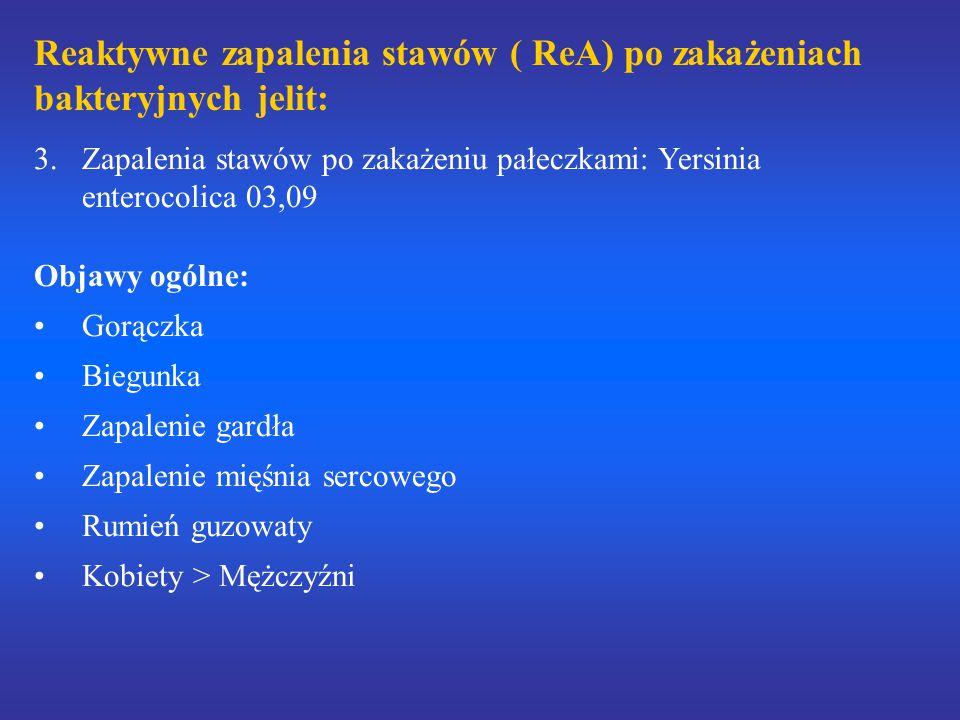 Reaktywne zapalenia stawów ( ReA) po zakażeniach bakteryjnych jelit: 3.Zapalenia stawów po zakażeniu pałeczkami: Yersinia enterocolica 03,09 Objawy og