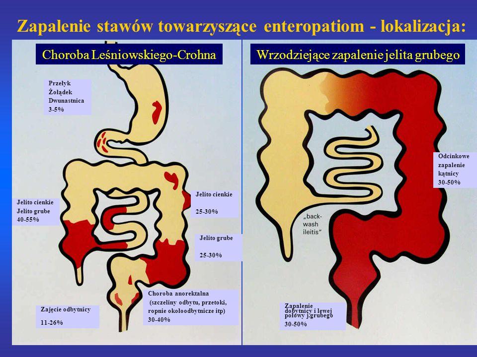 Zapalenie stawów towarzyszące enteropatiom - lokalizacja: Przełyk Żołądek Dwunastnica 3-5% Jelito cienkie Jelito grube 40-55% Choroba anorektalna (szczeliny odbytu, przetoki, ropnie okołoodbytnicze itp) 30-40% Jelito cienkie 25-30% Zajęcie odbytnicy 11-26% Jelito grube 25-30% Choroba Leśniowskiego-CrohnaWrzodziejące zapalenie jelita grubego Zapalenie dobytnicy i lewej połowy j.grubego 30-50% Odcinkowe zapalenie kątnicy 30-50%
