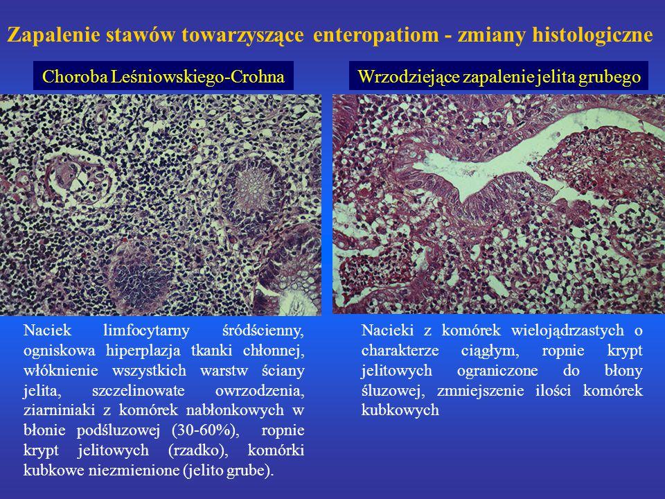 Zapalenie stawów towarzyszące enteropatiom - zmiany histologiczne Choroba Leśniowskiego-CrohnaWrzodziejące zapalenie jelita grubego Naciek limfocytarny śródścienny, ogniskowa hiperplazja tkanki chłonnej, włóknienie wszystkich warstw ściany jelita, szczelinowate owrzodzenia, ziarniniaki z komórek nabłonkowych w błonie podśluzowej (30-60%), ropnie krypt jelitowych (rzadko), komórki kubkowe niezmienione (jelito grube).