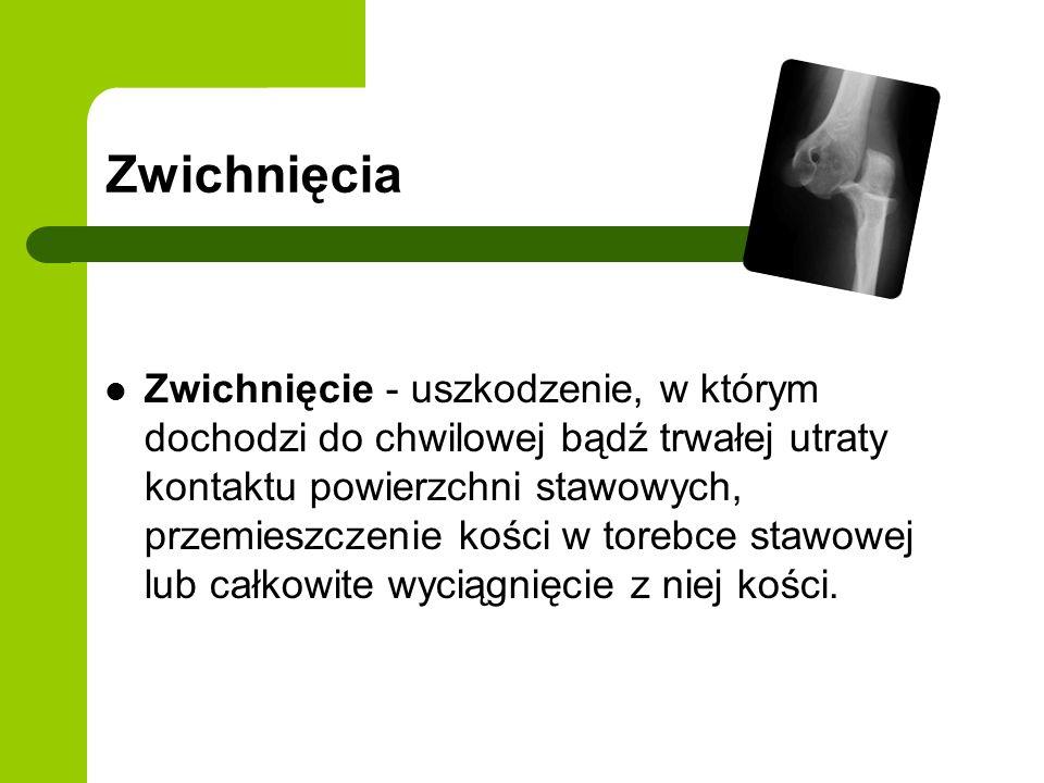 Zwichnięcia Zwichnięcie - uszkodzenie, w którym dochodzi do chwilowej bądź trwałej utraty kontaktu powierzchni stawowych, przemieszczenie kości w torebce stawowej lub całkowite wyciągnięcie z niej kości.