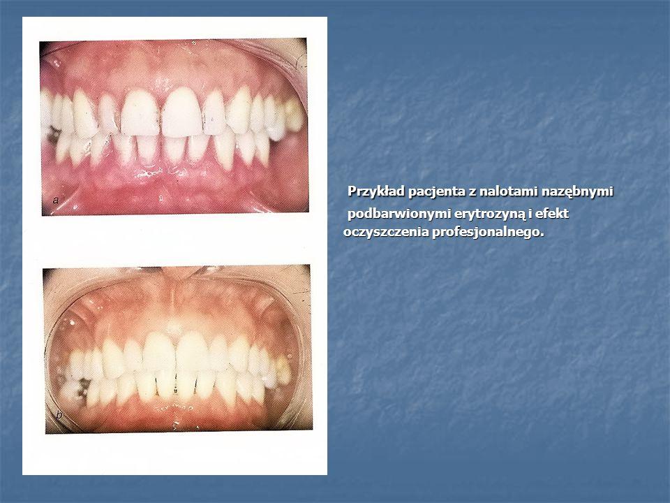 Przykład pacjenta z nalotami nazębnymi Przykład pacjenta z nalotami nazębnymi podbarwionymi erytrozyną i efekt podbarwionymi erytrozyną i efekt oczysz