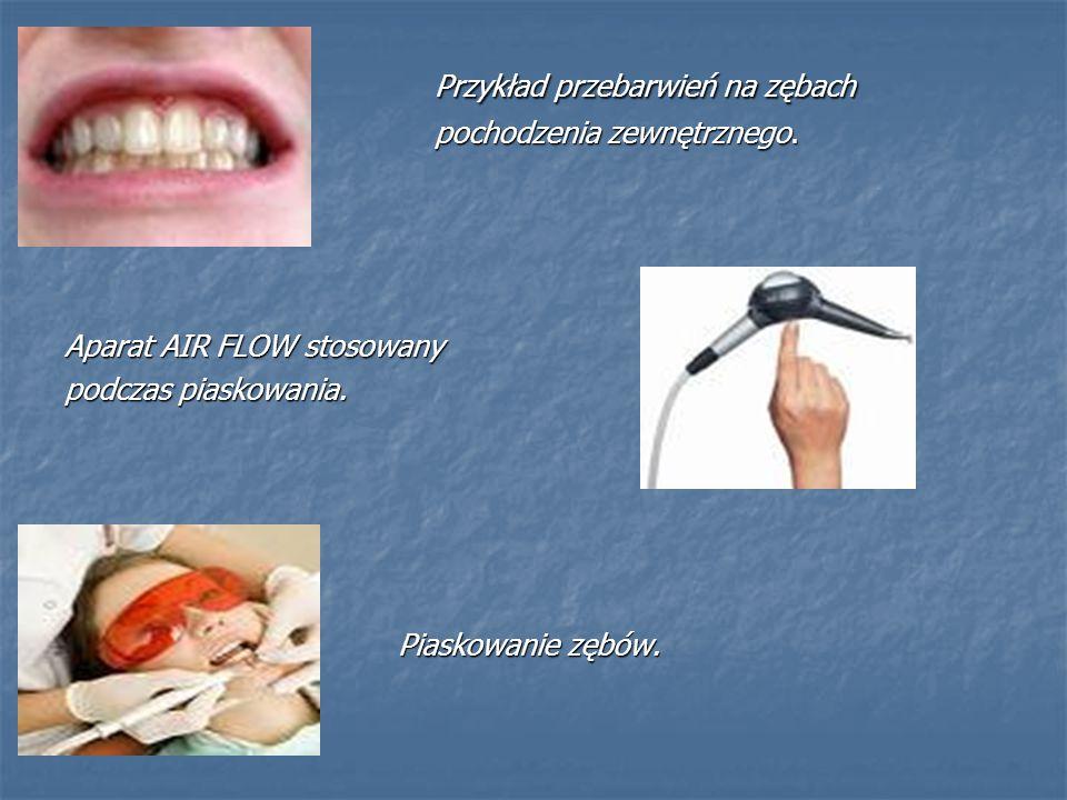 Przykład przebarwień na zębach Przykład przebarwień na zębach pochodzenia zewnętrznego. pochodzenia zewnętrznego. Aparat AIR FLOW stosowany podczas pi