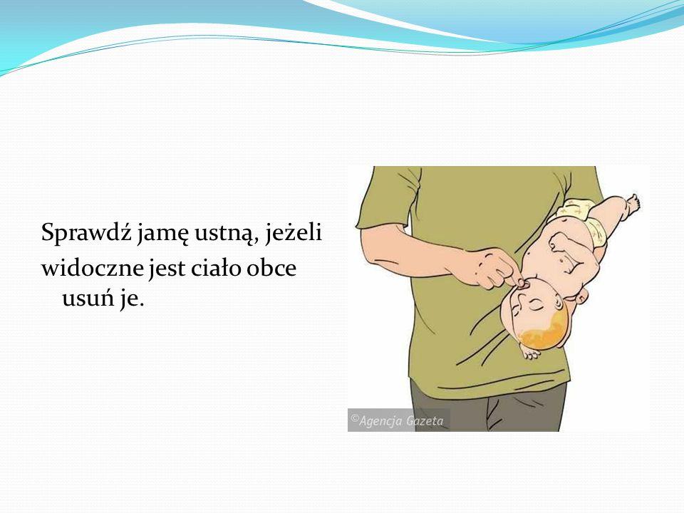 Sprawdź jamę ustną, jeżeli widoczne jest ciało obce usuń je.