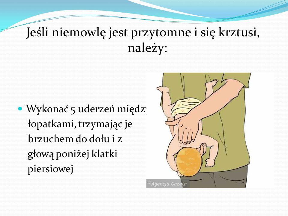 Jeśli niemowlę jest przytomne i się krztusi, należy: Wykonać 5 uderzeń między łopatkami, trzymając je brzuchem do dołu i z głową poniżej klatki piersi
