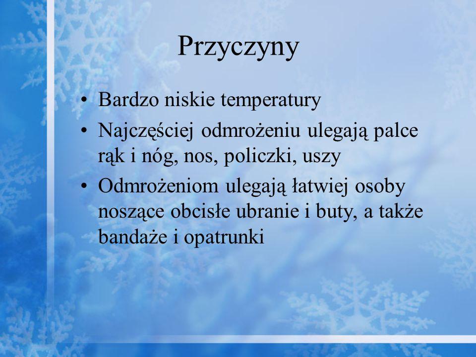 Przyczyny Bardzo niskie temperatury Najczęściej odmrożeniu ulegają palce rąk i nóg, nos, policzki, uszy Odmrożeniom ulegają łatwiej osoby noszące obci