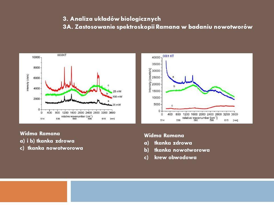 3. Analiza układów biologicznych 3A. Zastosowanie spektroskopii Ramana w badaniu nowotworów Widma Ramana a) i b) tkanka zdrowa c) tkanka nowotworowa W