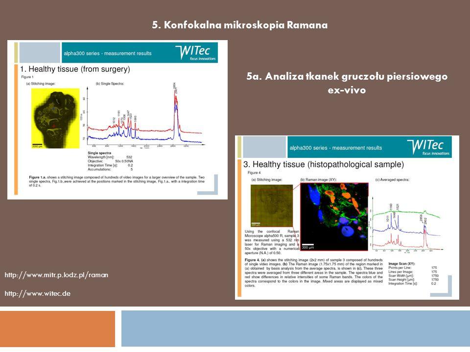 5. Konfokalna mikroskopia Ramana 5a. Analiza tkanek gruczołu piersiowego ex-vivo http://www.witec.de http://www.mitr.p.lodz.pl/raman