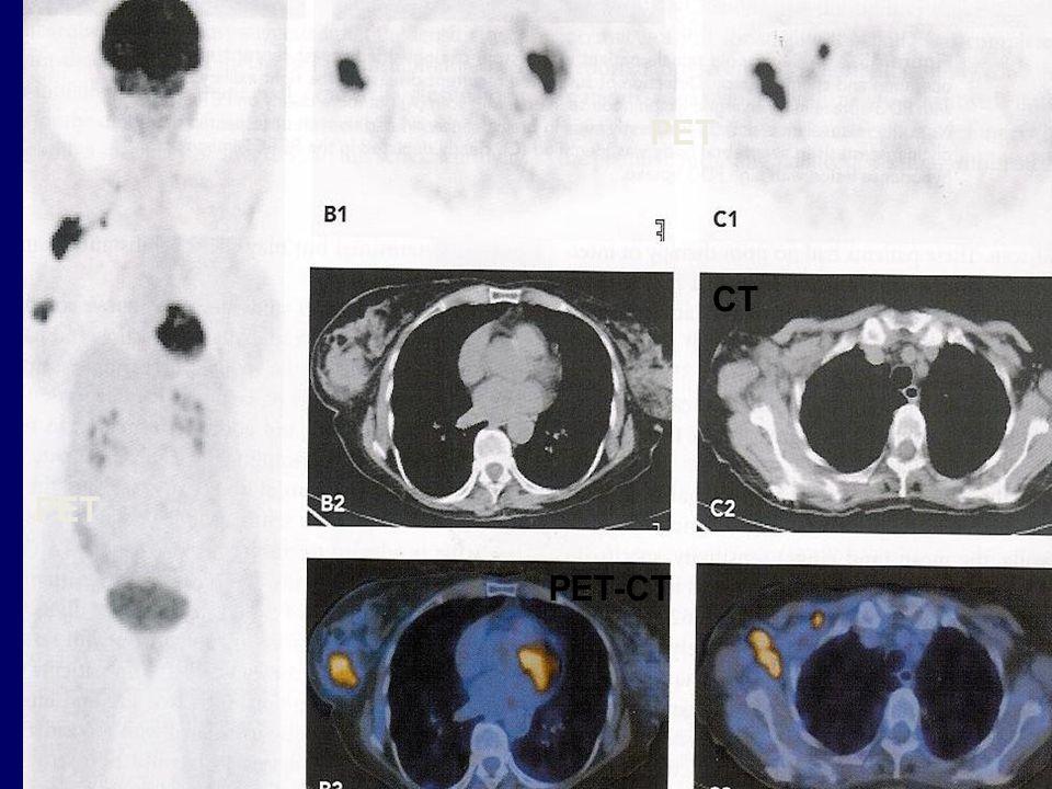 PET CT PET-CT