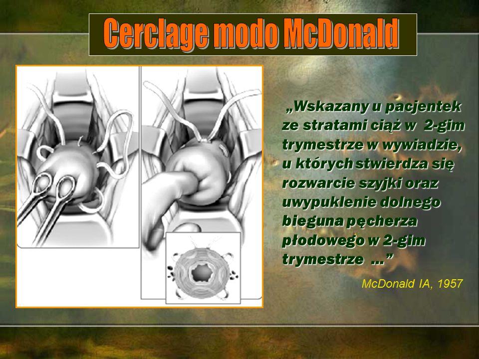 """""""Wskazany u pacjentek ze stratami ciąż w 2-gim trymestrze w wywiadzie, u których stwierdza się """"Wskazany u pacjentek ze stratami ciąż w 2-gim trymestrze w wywiadzie, u których stwierdza się rozwarcie szyjki oraz uwypuklenie dolnego bieguna pęcherza płodowego w 2-gim trymestrze … McDonald IA, 1957"""