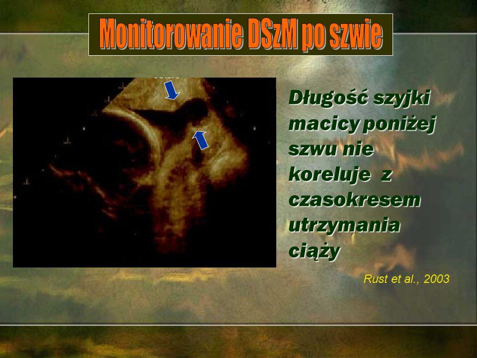 Rust et al., 2003 Długość szyjki macicy poniżej szwu nie koreluje z czasokresem utrzymania ciąży