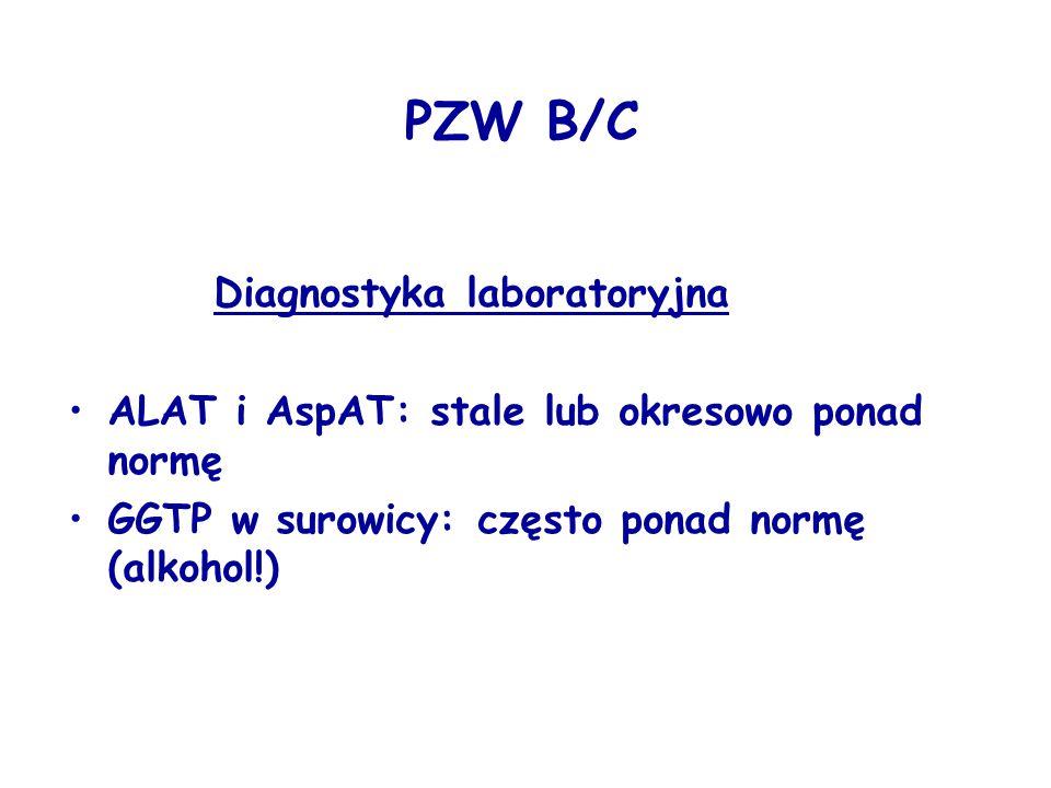 PZW B/C Diagnostyka laboratoryjna ALAT i AspAT: stale lub okresowo ponad normę GGTP w surowicy: często ponad normę (alkohol!)