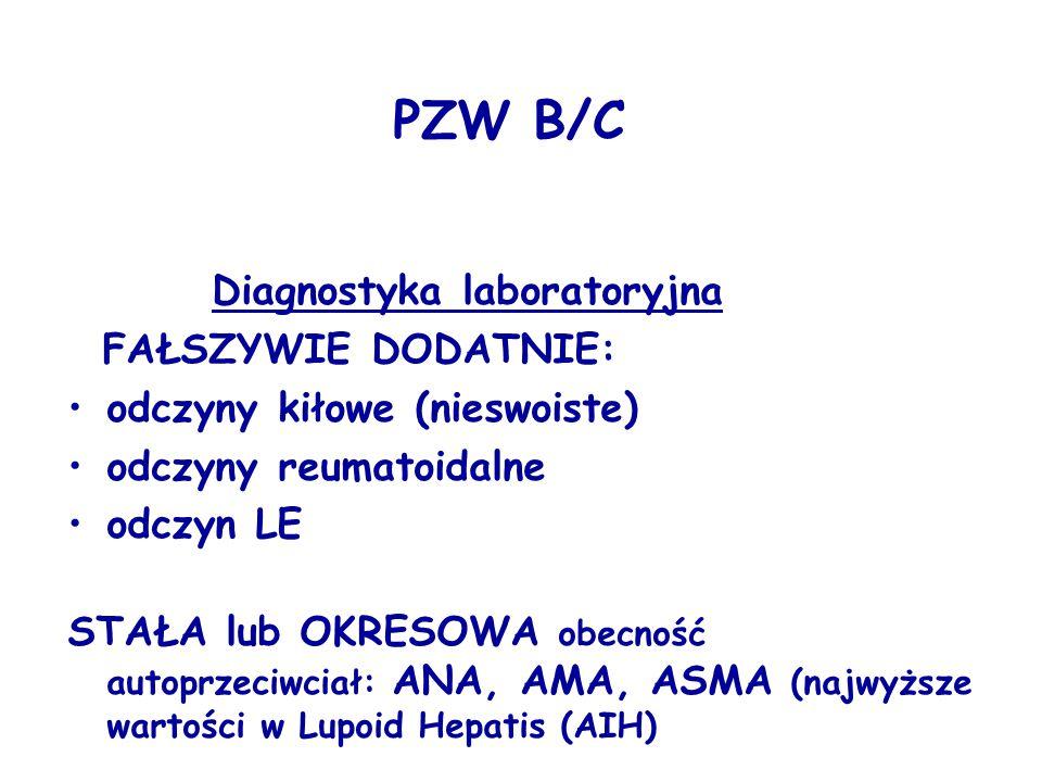 PZW B/C Diagnostyka laboratoryjna FAŁSZYWIE DODATNIE: odczyny kiłowe (nieswoiste) odczyny reumatoidalne odczyn LE STAŁA lub OKRESOWA obecność autoprze