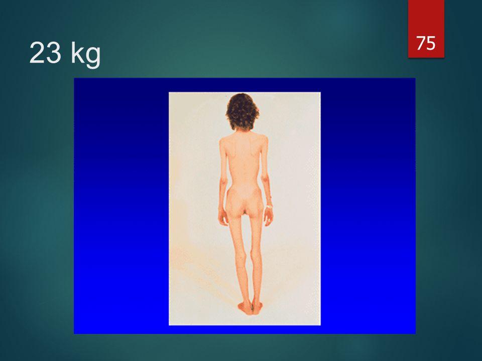 75 23 kg