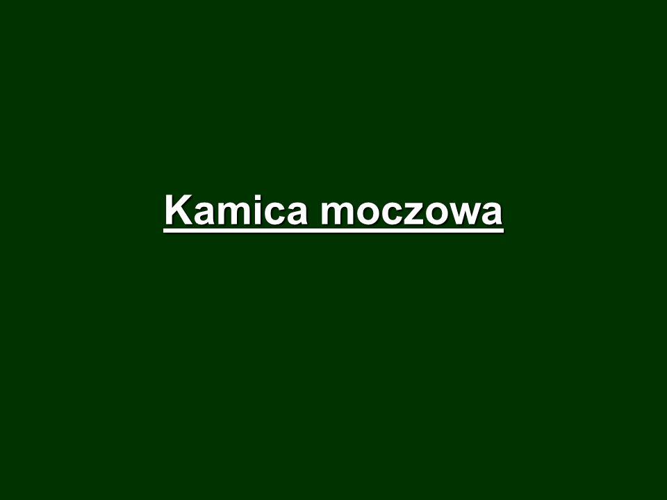 Kamica moczowa