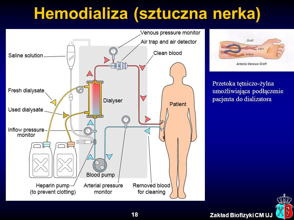 18 Zakład Biofizyki CM UJ Hemodializa (sztuczna nerka) Przetoka tętniczo-żylna umożliwiająca podłączenie pacjenta do dializatora