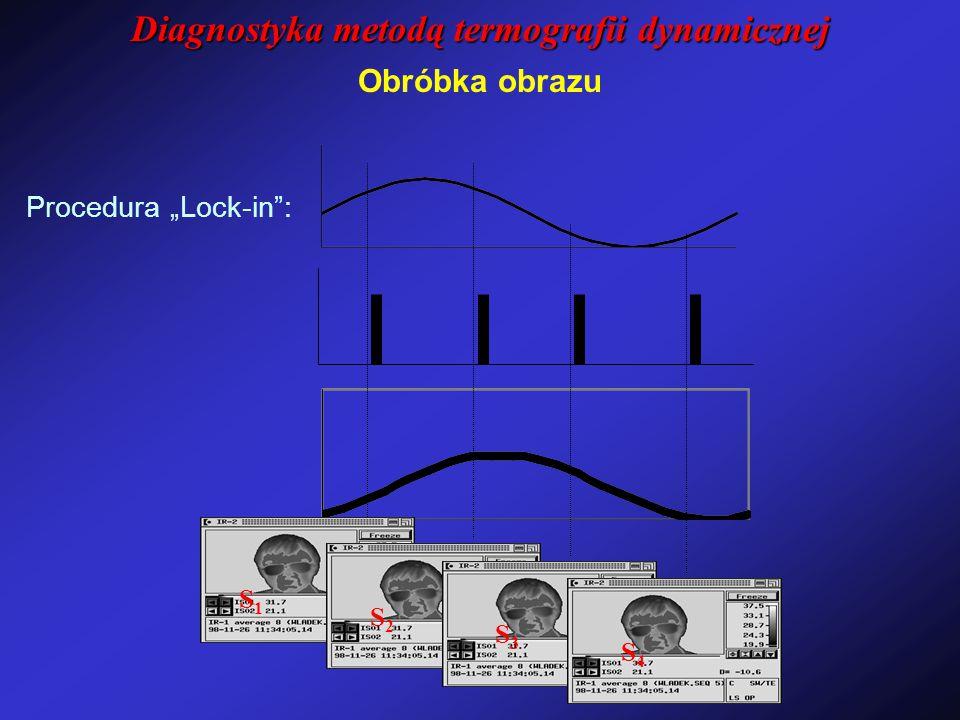 """S1S1 S2S2 S3S3 S4S4 Obróbka obrazu Procedura """"Lock-in"""": Diagnostyka metodą termografii dynamicznej"""