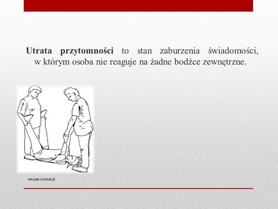 Utrata przytomności to stan zaburzenia świadomości, w którym osoba nie reaguje na żadne bodźce zewnętrzne. edu.pam.szczecin.pl