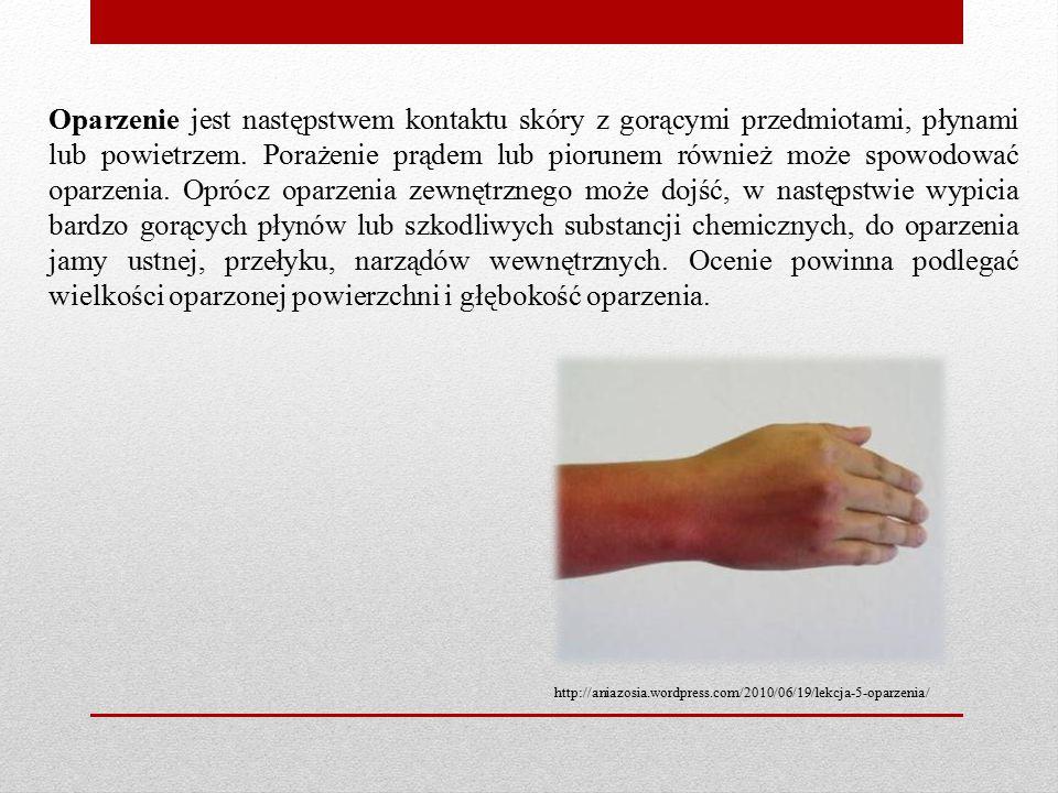 Oparzenie jest następstwem kontaktu skóry z gorącymi przedmiotami, płynami lub powietrzem. Porażenie prądem lub piorunem również może spowodować oparz