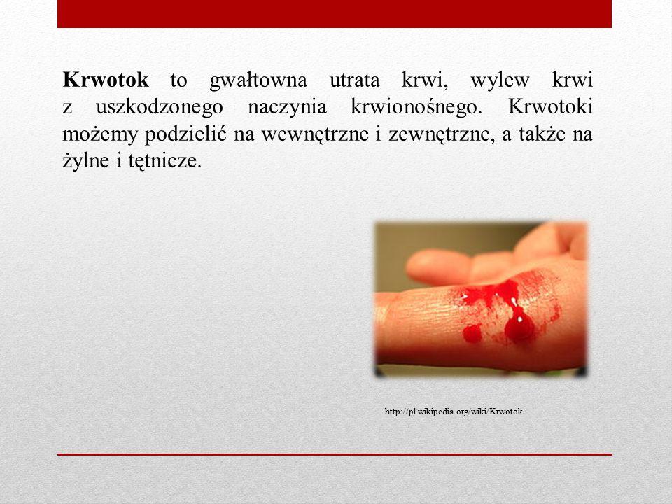 Krwotok to gwałtowna utrata krwi, wylew krwi z uszkodzonego naczynia krwionośnego. Krwotoki możemy podzielić na wewnętrzne i zewnętrzne, a także na ży