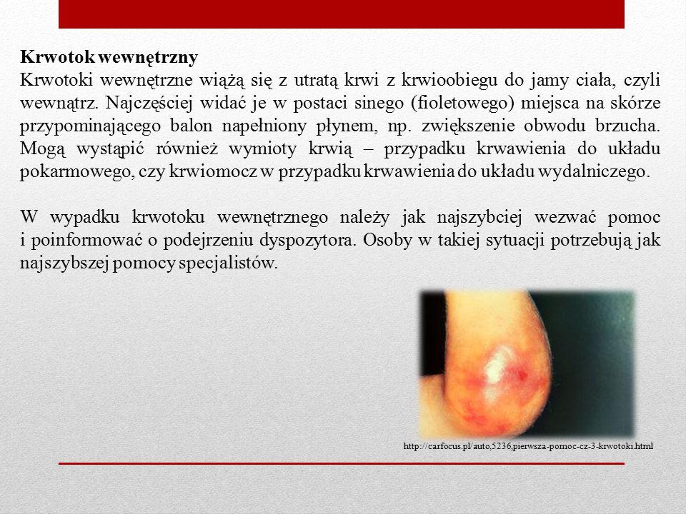 Krwotok wewnętrzny Krwotoki wewnętrzne wiążą się z utratą krwi z krwioobiegu do jamy ciała, czyli wewnątrz.