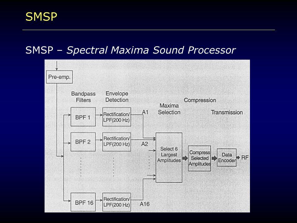 SMSP SMSP – Spectral Maxima Sound Processor