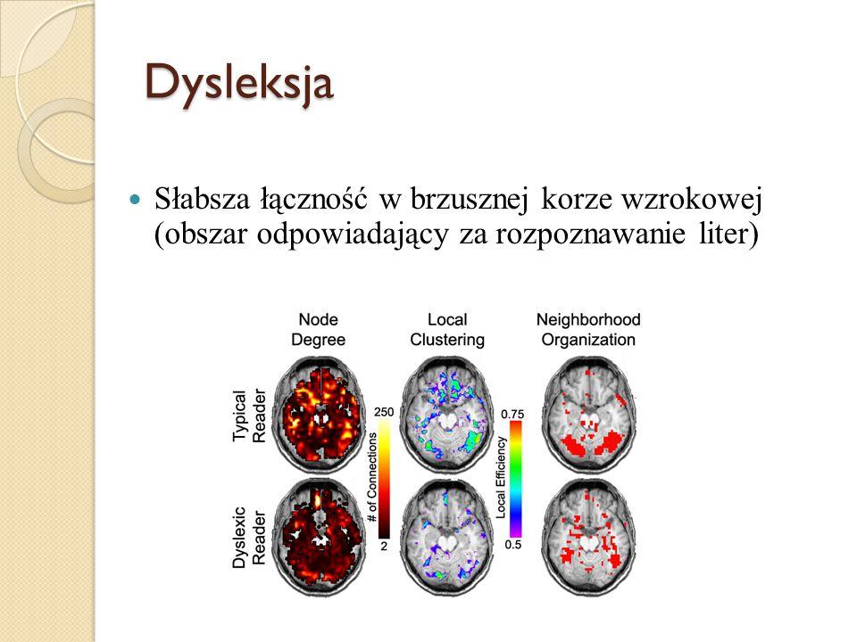 Dysleksja Słabsza łączność w brzusznej korze wzrokowej (obszar odpowiadający za rozpoznawanie liter)