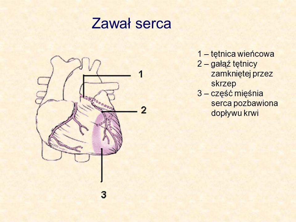 Zawał serca 1 – tętnica wieńcowa 2 – gałąź tętnicy zamkniętej przez skrzep 3 – część mięśnia serca pozbawiona dopływu krwi