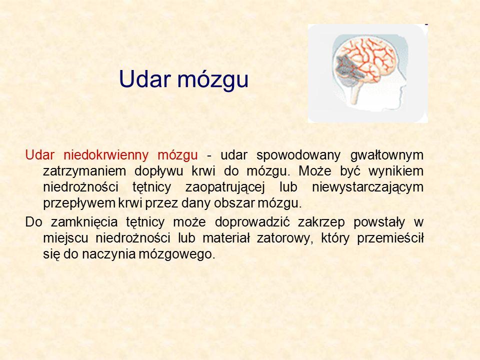 Udar mózgu Udar niedokrwienny mózgu - udar spowodowany gwałtownym zatrzymaniem dopływu krwi do mózgu. Może być wynikiem niedrożności tętnicy zaopatruj