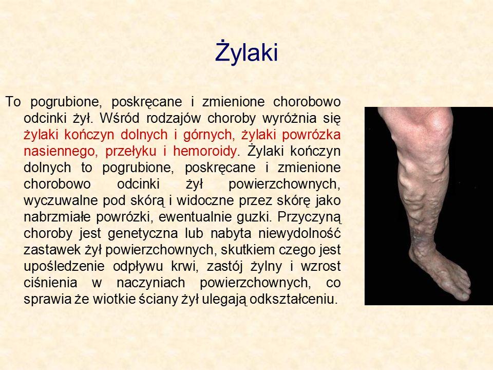Żylaki To pogrubione, poskręcane i zmienione chorobowo odcinki żył. Wśród rodzajów choroby wyróżnia się żylaki kończyn dolnych i górnych, żylaki powró