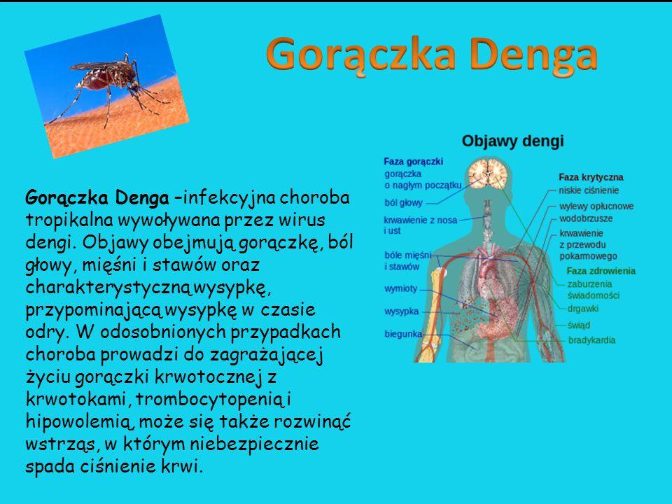 Gorączka Zachodniego Nilu – choroba wirusowa zaliczana do grupy gorączek krwotocznych występująca na kilku kontynentach.