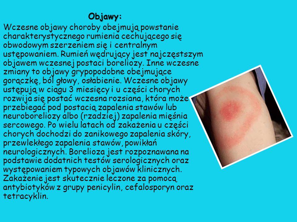 Objawy: Wczesne objawy choroby obejmują powstanie charakterystycznego rumienia cechującego się obwodowym szerzeniem się i centralnym ustępowaniem.