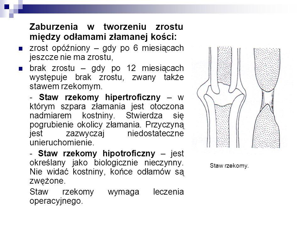 Zaburzenia w tworzeniu zrostu między odłamami złamanej kości: zrost opóźniony – gdy po 6 miesiącach jeszcze nie ma zrostu, brak zrostu – gdy po 12 miesiącach występuje brak zrostu, zwany także stawem rzekomym.
