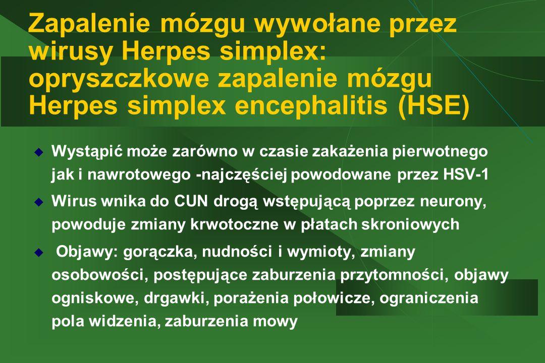 Zapalenie mózgu wywołane przez wirusy Herpes simplex: opryszczkowe zapalenie mózgu Herpes simplex encephalitis (HSE)  Wystąpić może zarówno w czasie zakażenia pierwotnego jak i nawrotowego -najczęściej powodowane przez HSV-1  Wirus wnika do CUN drogą wstępującą poprzez neurony, powoduje zmiany krwotoczne w płatach skroniowych  Objawy: gorączka, nudności i wymioty, zmiany osobowości, postępujące zaburzenia przytomności, objawy ogniskowe, drgawki, porażenia połowicze, ograniczenia pola widzenia, zaburzenia mowy
